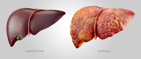 Essential Solutions For Your Liver Organ System Health Heaven